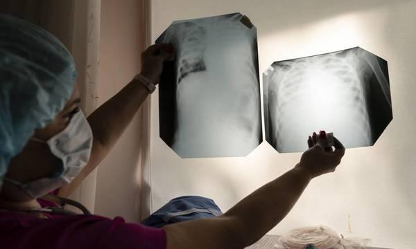 Κορονοϊός: Οι συνέπειες στους πνεύμονες και σε άλλα όργανα του σώματος που οδηγούν στον θάνατο