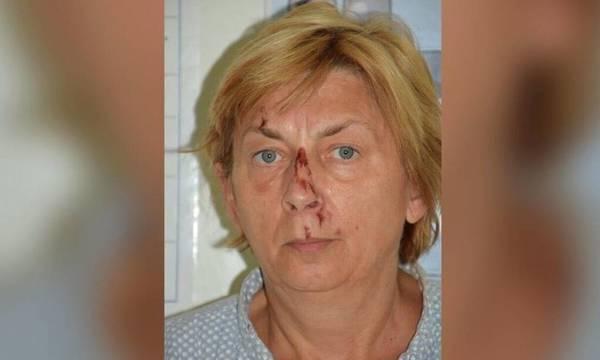 Κροατία: Γυναίκα βρέθηκε τραυματισμένη σε νησί - Δεν θυμάται το όνομά της ούτε πώς πήγε εκεί